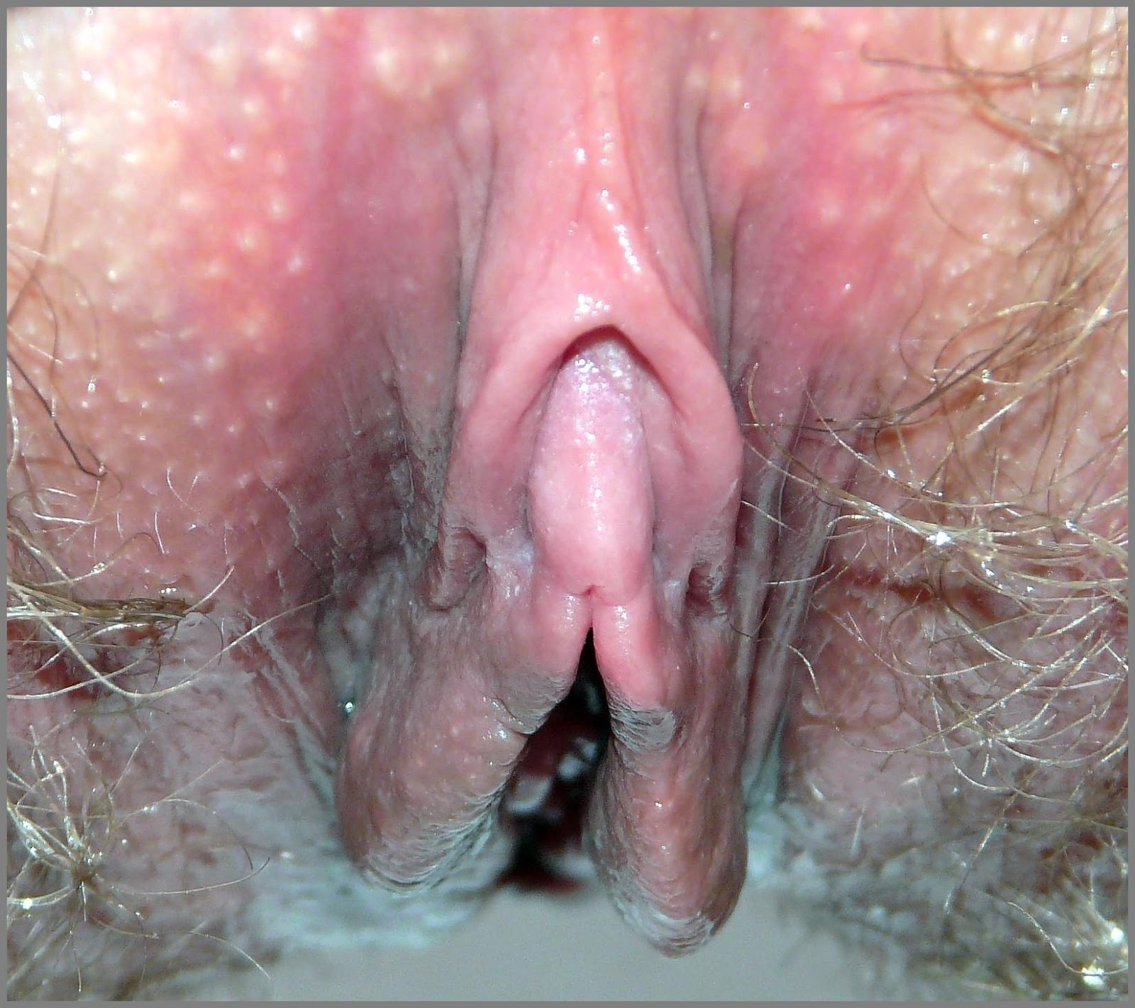 Clitoris normal vagina